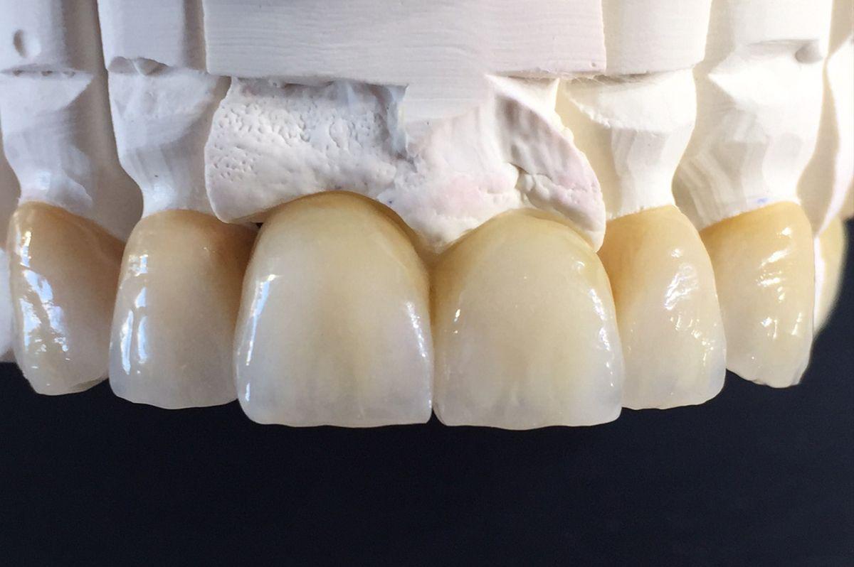 Zahnprothetik von SE Dentaltechnik